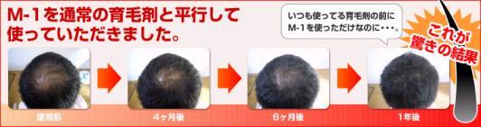 驚きの【M-1】の発毛・育毛効果!